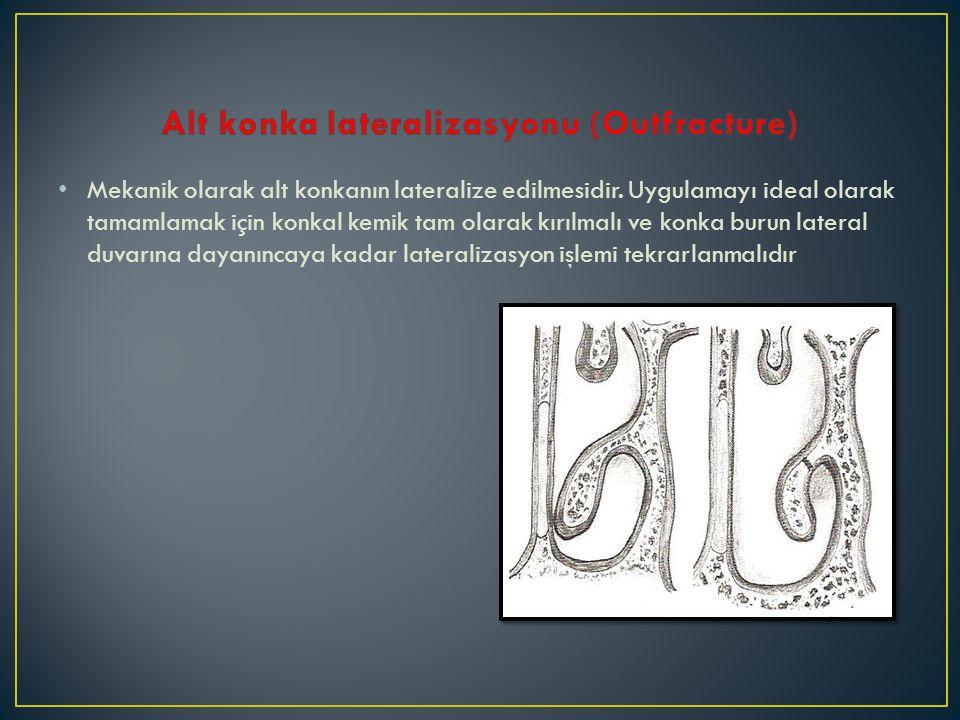 Mekanik olarak alt konkanın lateralize edilmesidir. Uygulamayı ideal olarak tamamlamak için konkal kemik tam olarak kırılmalı ve konka burun lateral d