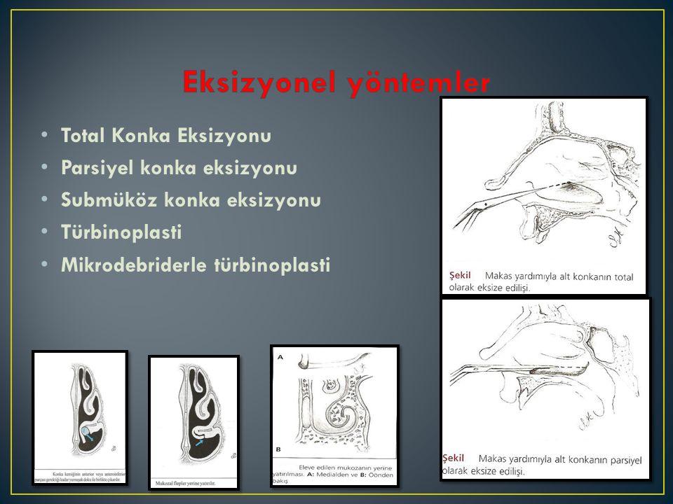 Total Konka Eksizyonu Parsiyel konka eksizyonu Submüköz konka eksizyonu Türbinoplasti Mikrodebriderle türbinoplasti