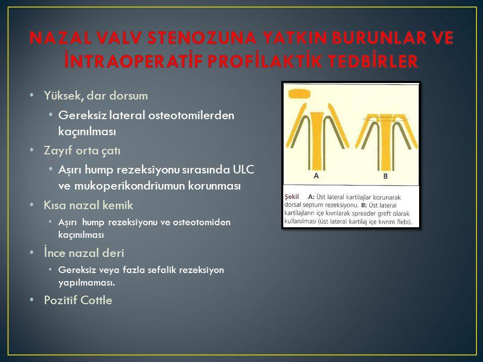 Yüksek, dar dorsum Gereksiz lateral osteotomilerden kaçınılması Zayıf orta çatı Aşırı hump rezeksiyonu sırasında ULC ve mukoperikondriumun korunması K