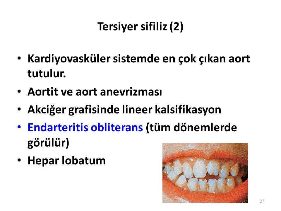 Tersiyer sifiliz (2) Kardiyovasküler sistemde en çok çıkan aort tutulur.