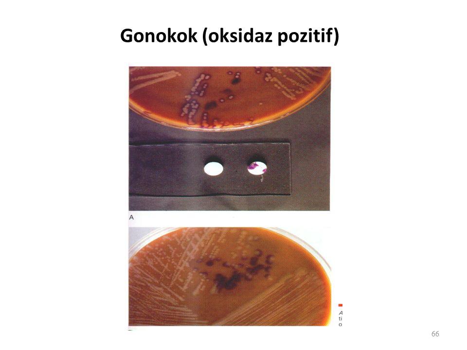 Gonokok (oksidaz pozitif) 66