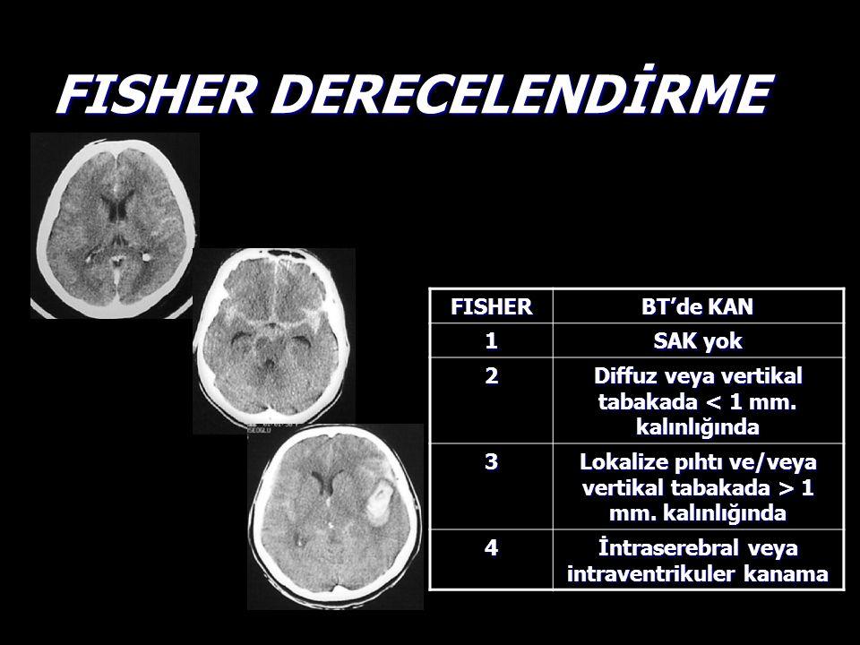 FISHER DERECELENDİRME FISHER BT'de KAN 1 SAK yok 2 Diffuz veya vertikal tabakada < 1 mm. kalınlığında 3 Lokalize pıhtı ve/veya vertikal tabakada > 1 m