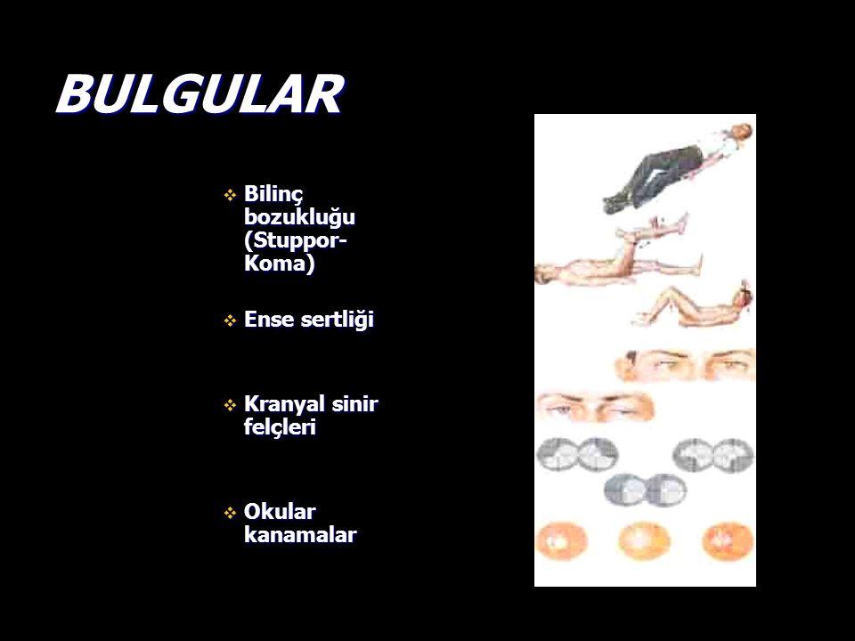 BULGULAR  Bilinç bozukluğu (Stuppor- Koma)  Ense sertliği  Kranyal sinir felçleri  Okular kanamalar