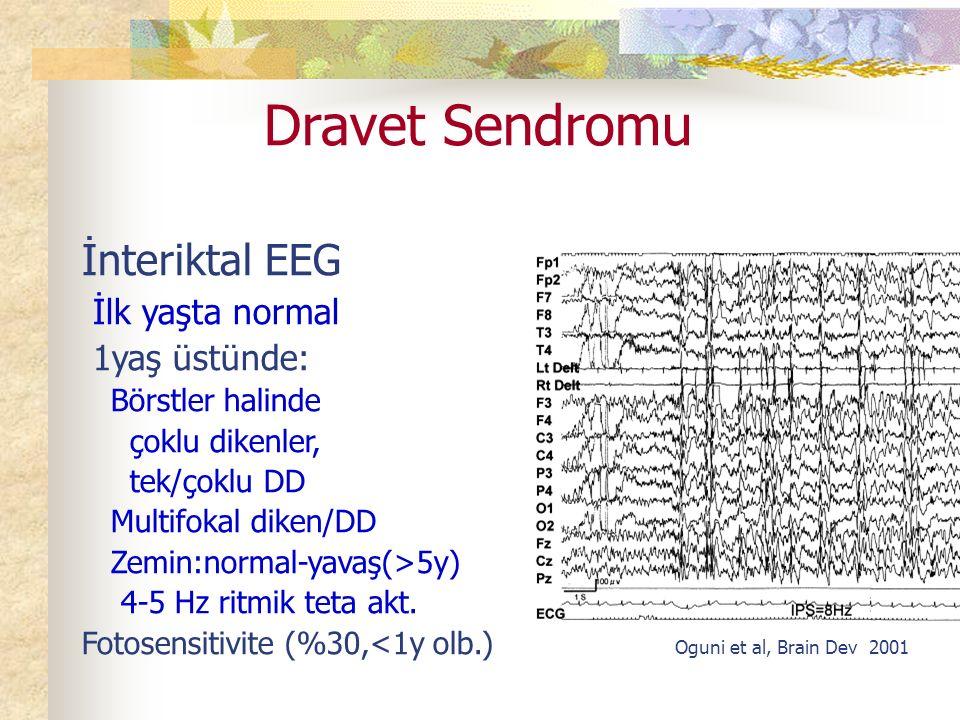 Dravet Sendromu İnteriktal EEG İlk yaşta normal 1yaş üstünde: Börstler halinde çoklu dikenler, tek/çoklu DD Multifokal diken/DD Zemin:normal-yavaş(>5y) 4-5 Hz ritmik teta akt.