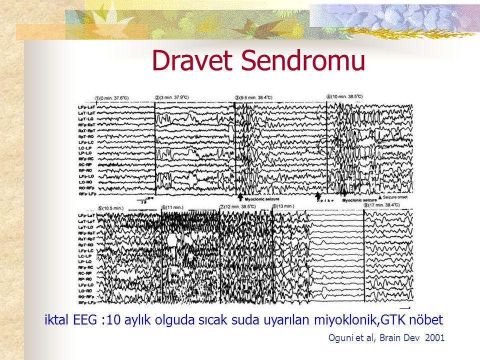 Dravet Sendromu Oguni et al, Brain Dev 2001 iktal EEG :10 aylık olguda sıcak suda uyarılan miyoklonik,GTK nöbet