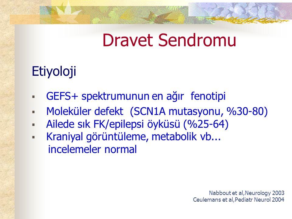 Dravet Sendromu Etiyoloji  GEFS+ spektrumunun en ağır fenotipi  Moleküler defekt (SCN1A mutasyonu, %30-80)  Ailede sık FK/epilepsi öyküsü (%25-64)  Kraniyal görüntüleme, metabolik vb...