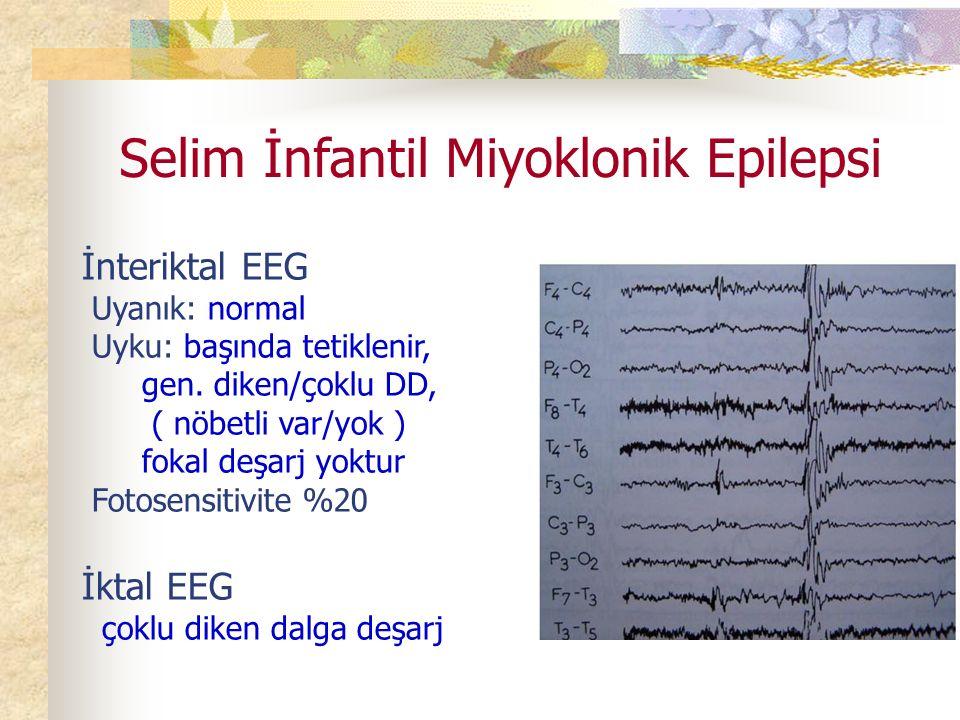 Selim İnfantil Miyoklonik Epilepsi İnteriktal EEG Uyanık: normal Uyku: başında tetiklenir, gen.