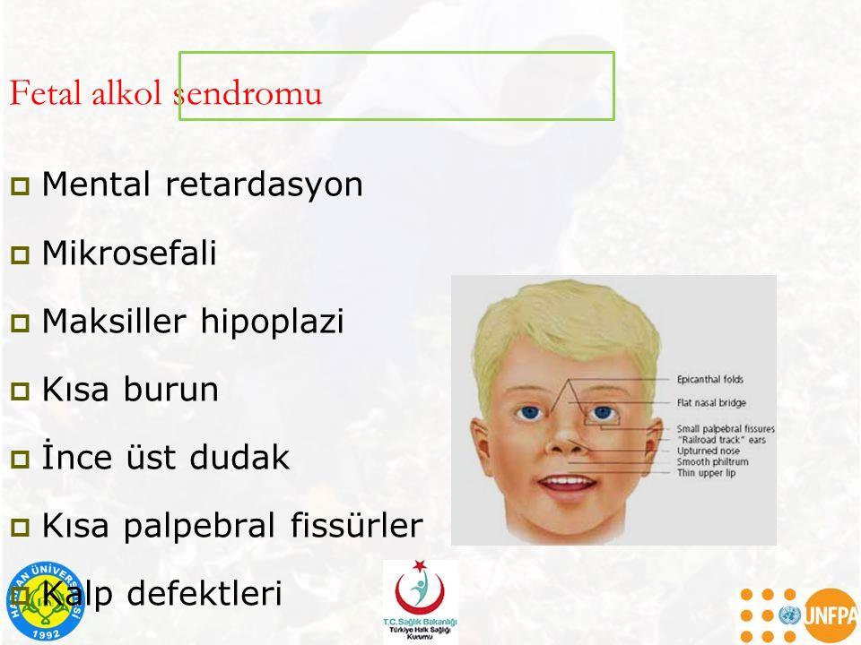 Fetal alkol sendromu  Mental retardasyon  Mikrosefali  Maksiller hipoplazi  Kısa burun  İnce üst dudak  Kısa palpebral fissürler  Kalp defektle