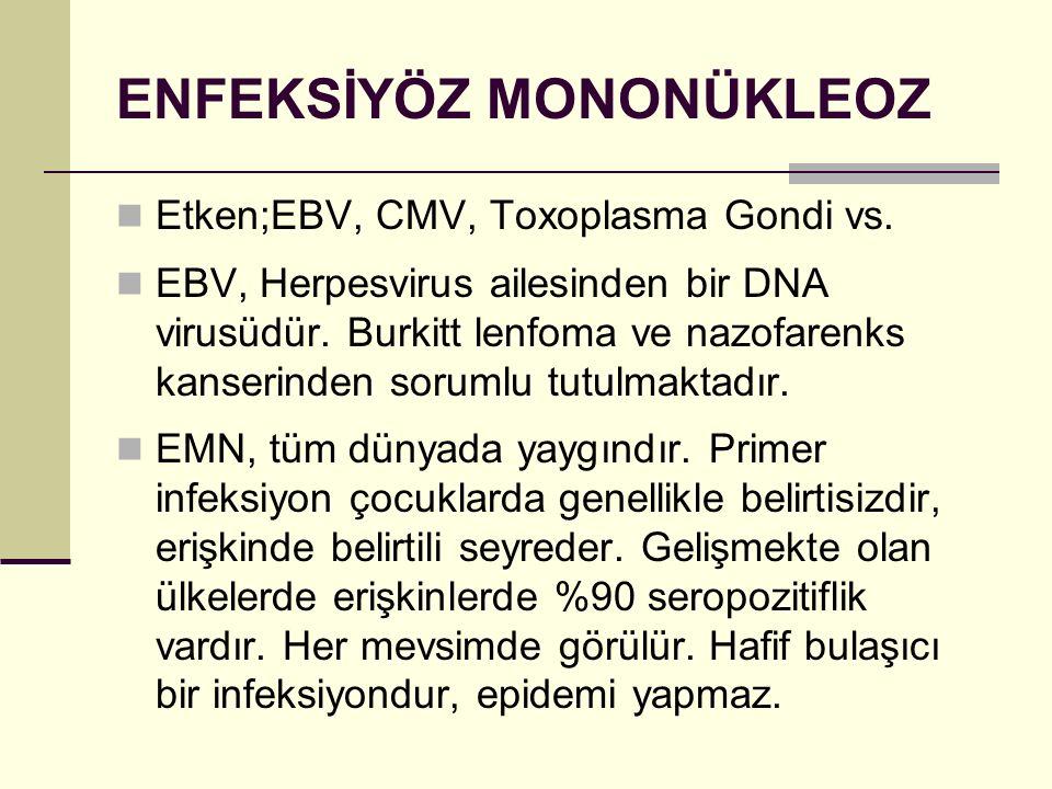 ENFEKSİYÖZ MONONÜKLEOZ Etken;EBV, CMV, Toxoplasma Gondi vs. EBV, Herpesvirus ailesinden bir DNA virusüdür. Burkitt lenfoma ve nazofarenks kanserinden