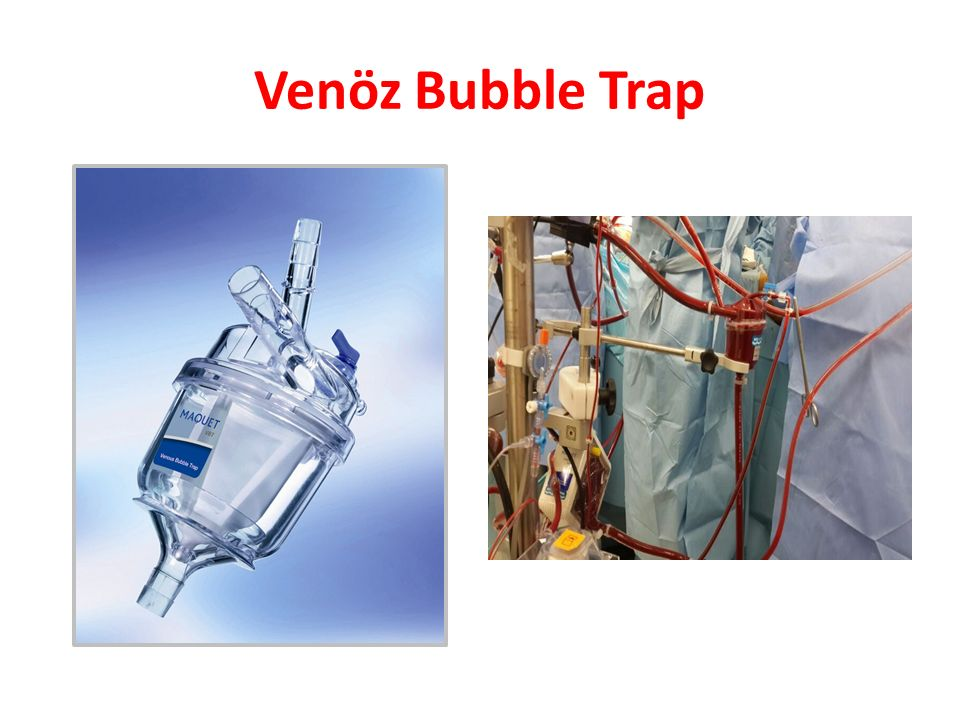 Venöz Bubble Trap