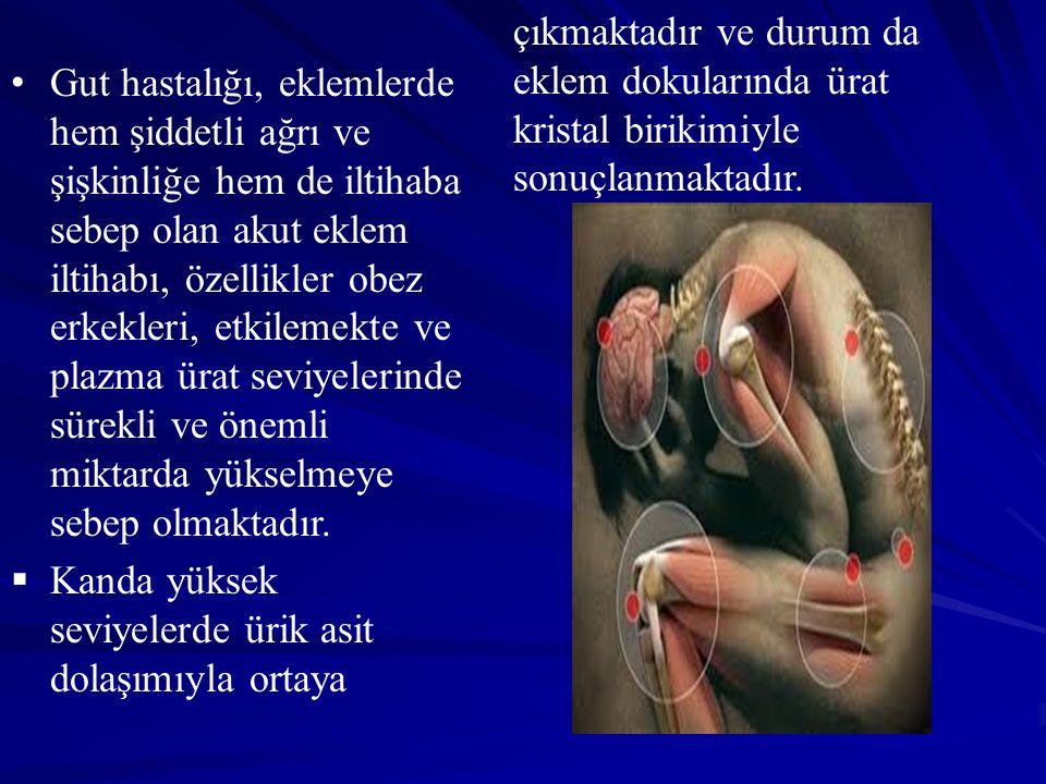 Gut hastalığı, eklemlerde hem şiddetli ağrı ve şişkinliğe hem de iltihaba sebep olan akut eklem iltihabı, özellikler obez erkekleri, etkilemekte ve pl