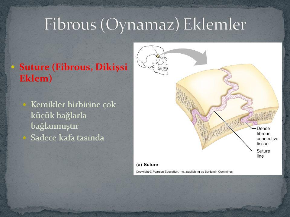 Suture (Fibrous, Dikişsi Eklem) Kemikler birbirine çok küçük bağlarla bağlanmıştır Sadece kafa tasında