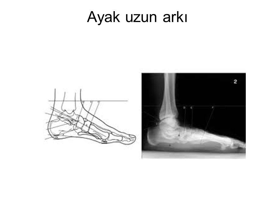 Ayak uzun arkı