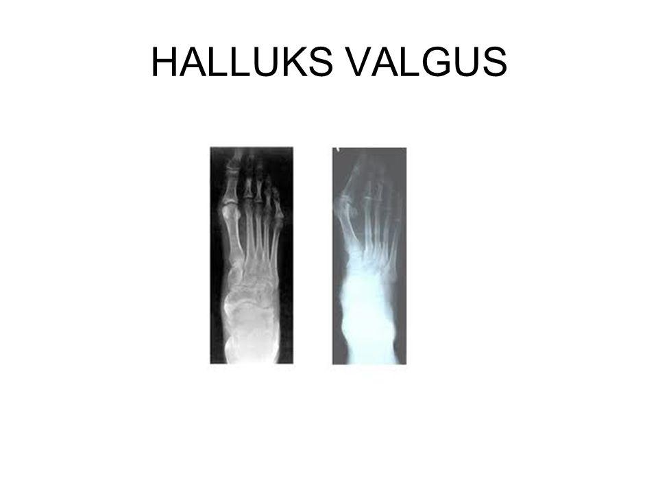 HALLUKS VALGUS