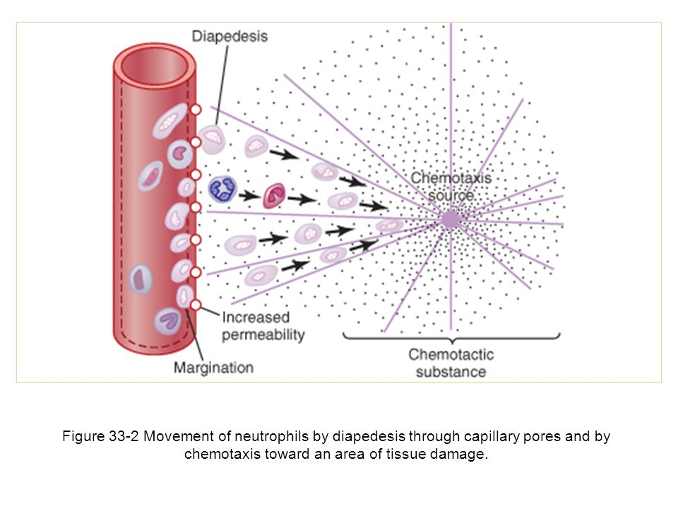 Figure 33-2 Movement of neutrophils by diapedesis through capillary pores and by chemotaxis toward an area of tissue damage.