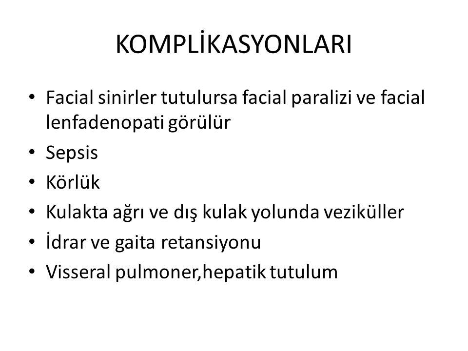 KOMPLİKASYONLARI Facial sinirler tutulursa facial paralizi ve facial lenfadenopati görülür Sepsis Körlük Kulakta ağrı ve dış kulak yolunda veziküller