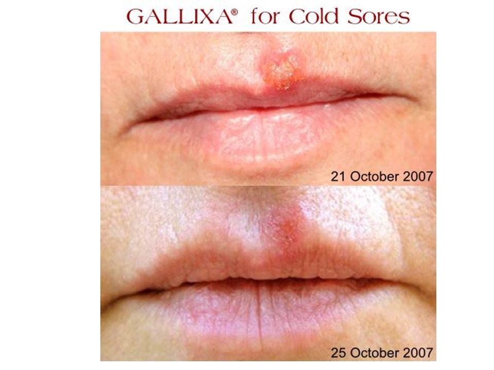 ETKEN Herpes simplex Tip 1