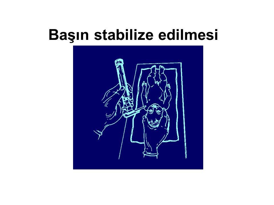 Başın stabilize edilmesi