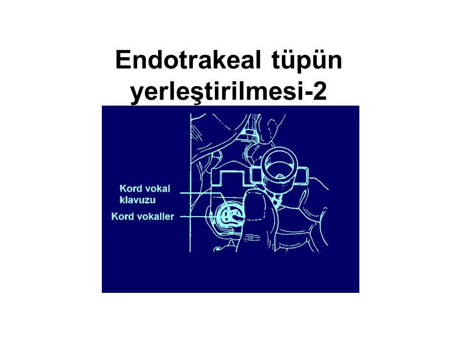 Endotrakeal tüpün yerleştirilmesi-2