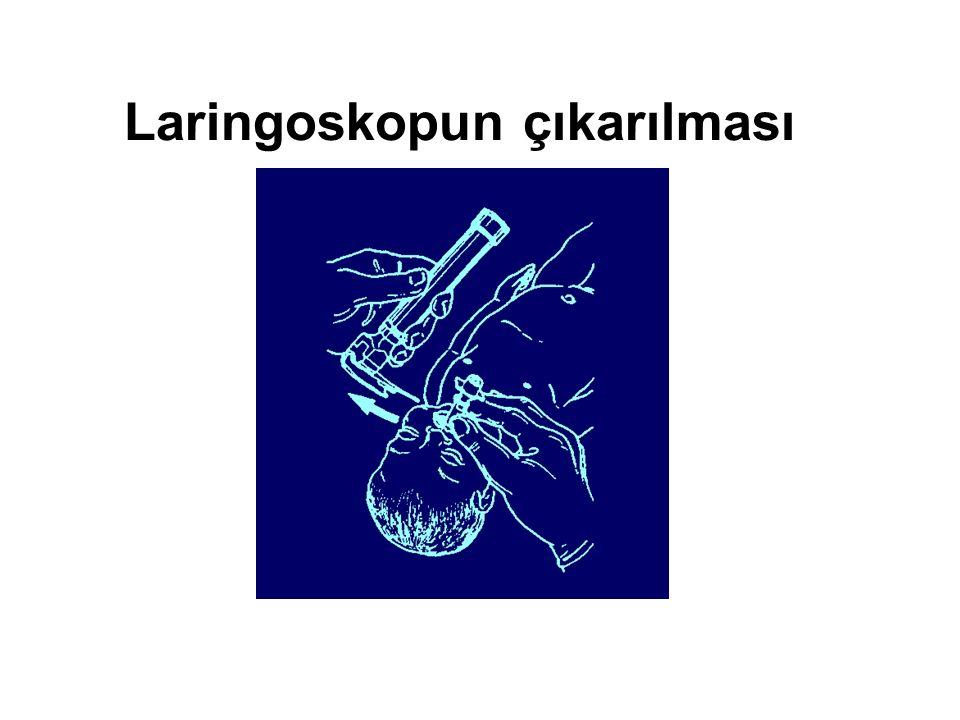 Laringoskopun çıkarılması