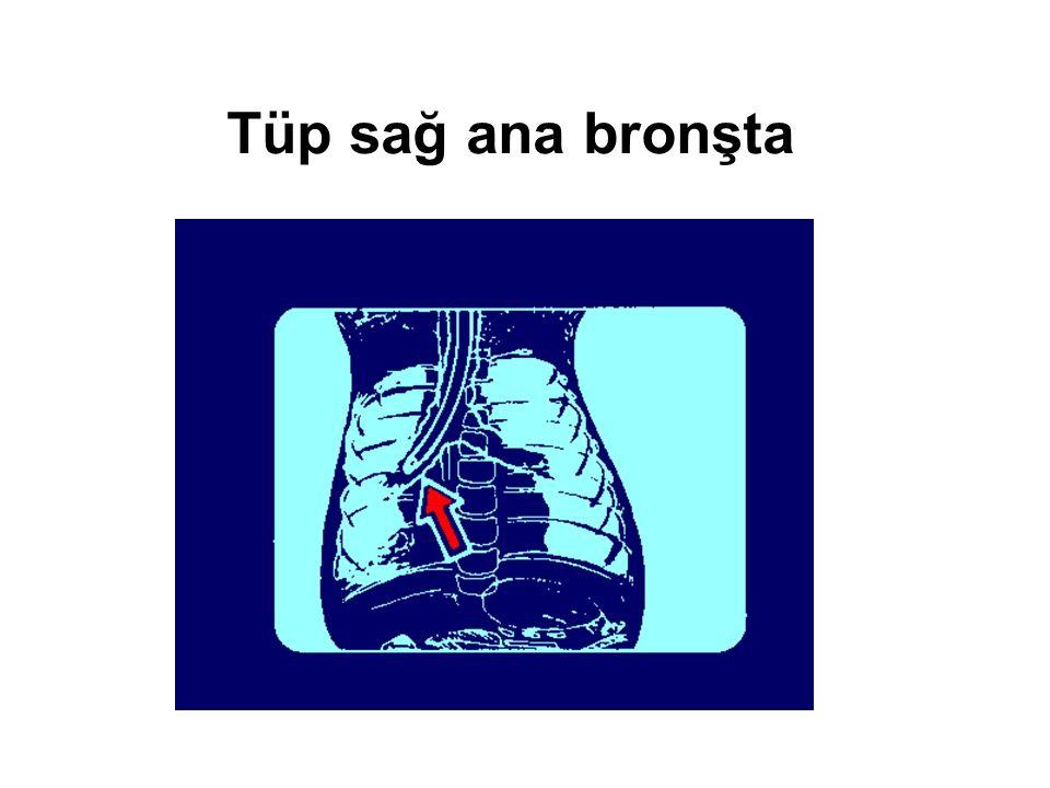 Tüp sağ ana bronşta