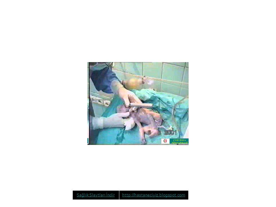Sağlık Slaytları İndirhttp://hastaneciyiz.blogspot.com