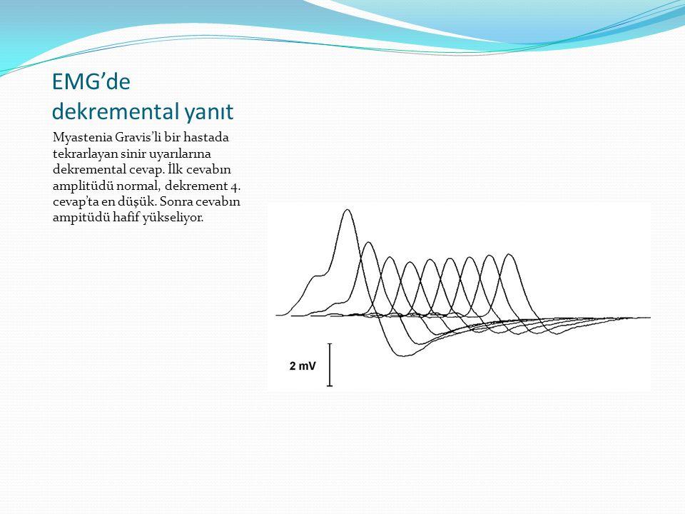 EMG'de dekremental yanıt Myastenia Gravis'li bir hastada tekrarlayan sinir uyarılarına dekremental cevap. İlk cevabın amplitüdü normal, dekrement 4. c