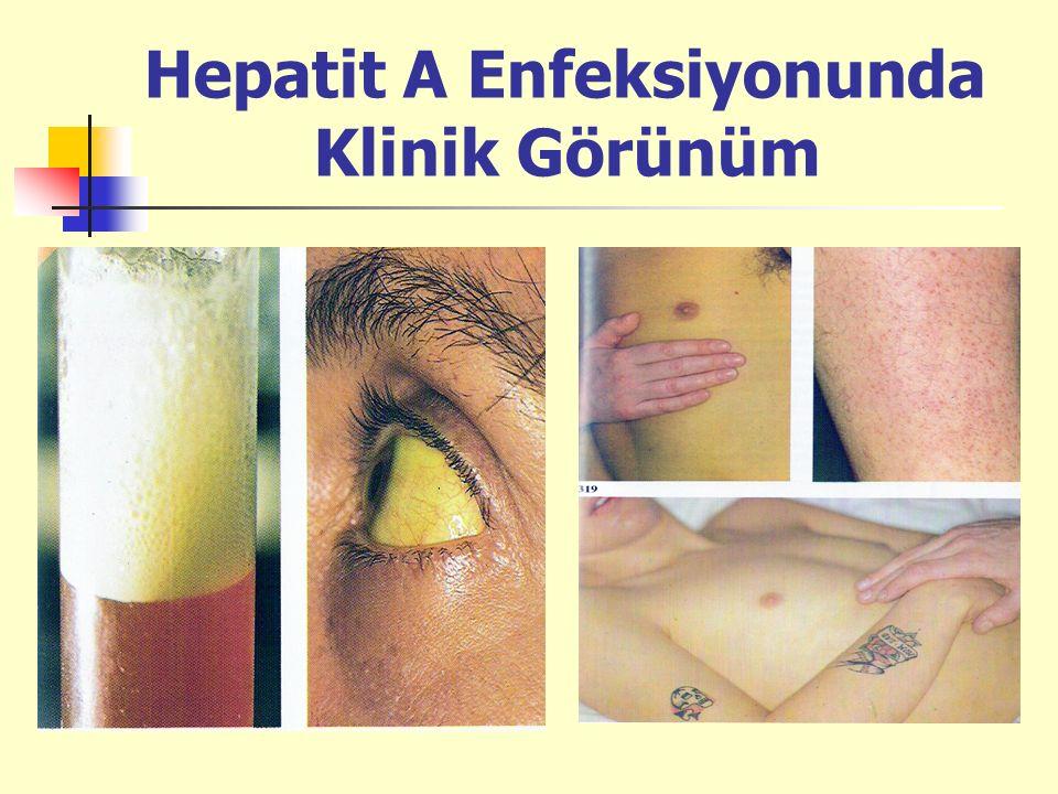 Hepatit A Enfeksiyonunda Klinik Görünüm