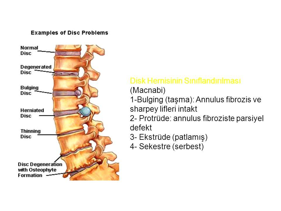 Disk Hernisinin Sınıflandırılması (Macnabi) 1-Bulging (taşma): Annulus fibrozis ve sharpey lifleri intakt 2- Protrüde: annulus fibroziste parsiyel def