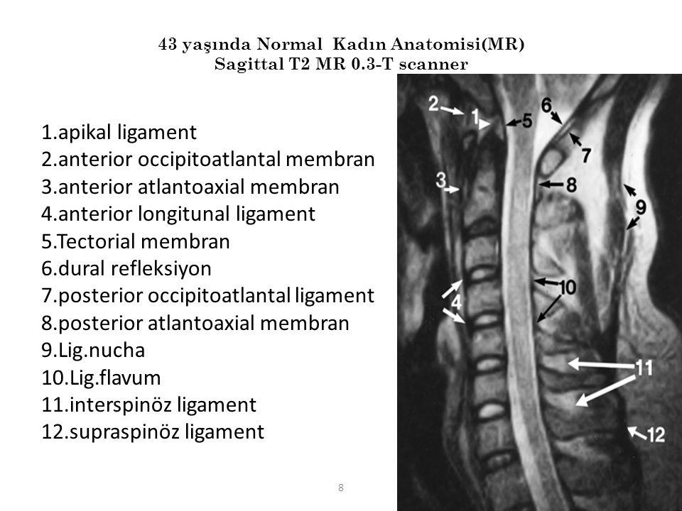8 43 yaşında Normal Kadın Anatomisi(MR) Sagittal T2 MR 0.3-T scanner 1.apikal ligament 2.anterior occipitoatlantal membran 3.anterior atlantoaxial mem