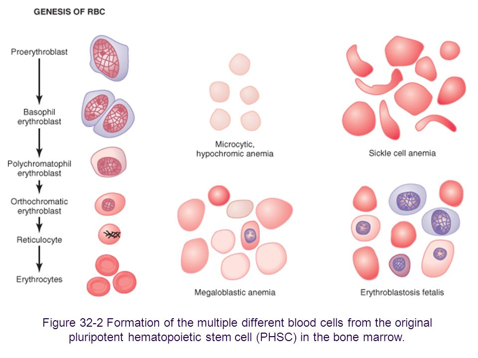 Figure 32-2 Formation of the multiple different blood cells from the original pluripotent hematopoietic stem cell (PHSC) in the bone marrow.