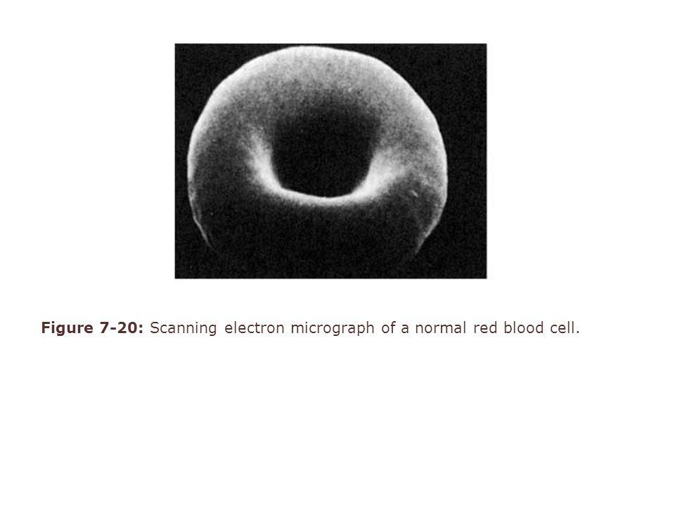 Figure 6-9: Megaloblastic hematopoiesis : morphologic changes visible with microscopic examination of bone marrow or peripheral blood.