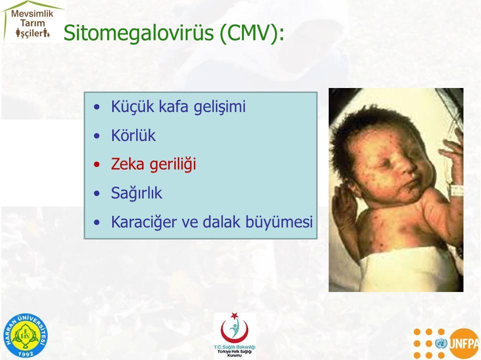 Sitomegalovirüs (CMV): Küçük kafa gelişimi Körlük Zeka geriliği Sağırlık Karaciğer ve dalak büyümesi