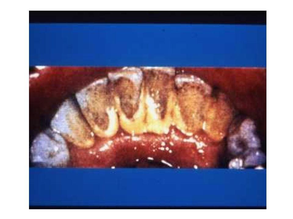Dişeti hastalığının sebepleri nelerdir? *Kötü ağız bakımı *Diş taşları *Diş çürükleri *Hormonal değişimler * Vitamin eksikliği(Özellikle A ve C )