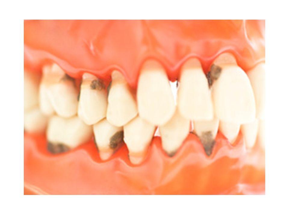 Diştaşı nedir?Nasıl oluşur.*Tükrükteki kireçsi maddelerin dişin üstüne çökmesiyle oluşur.