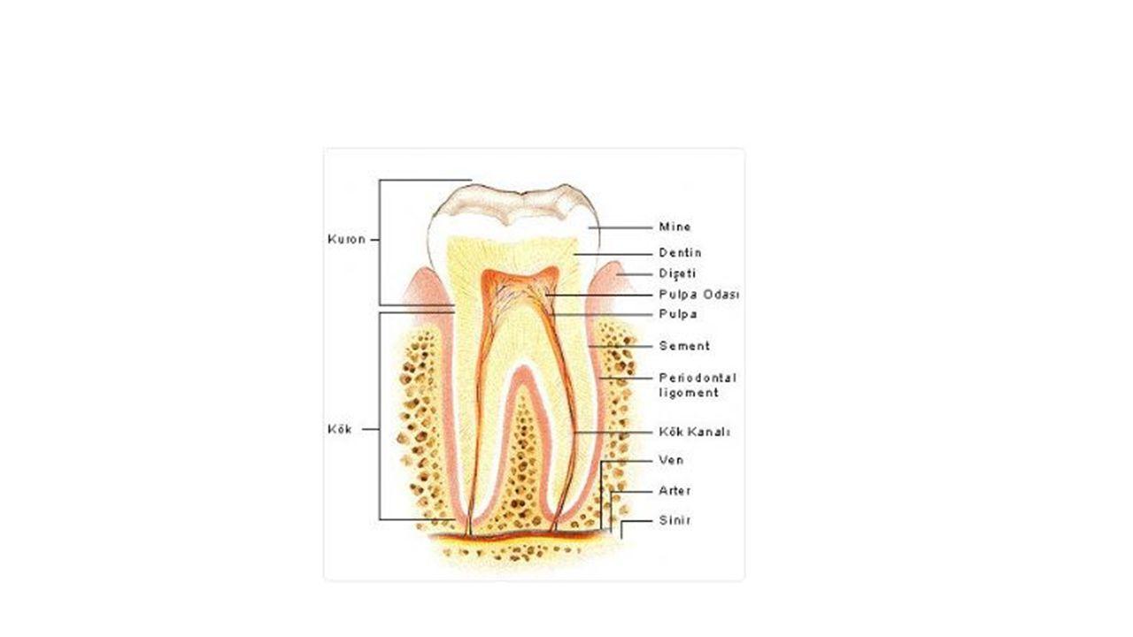 Diş minesinde küçük siyah bir noktanın oluşmasıyla başlayan diş çürüğü zamanla ilerler.