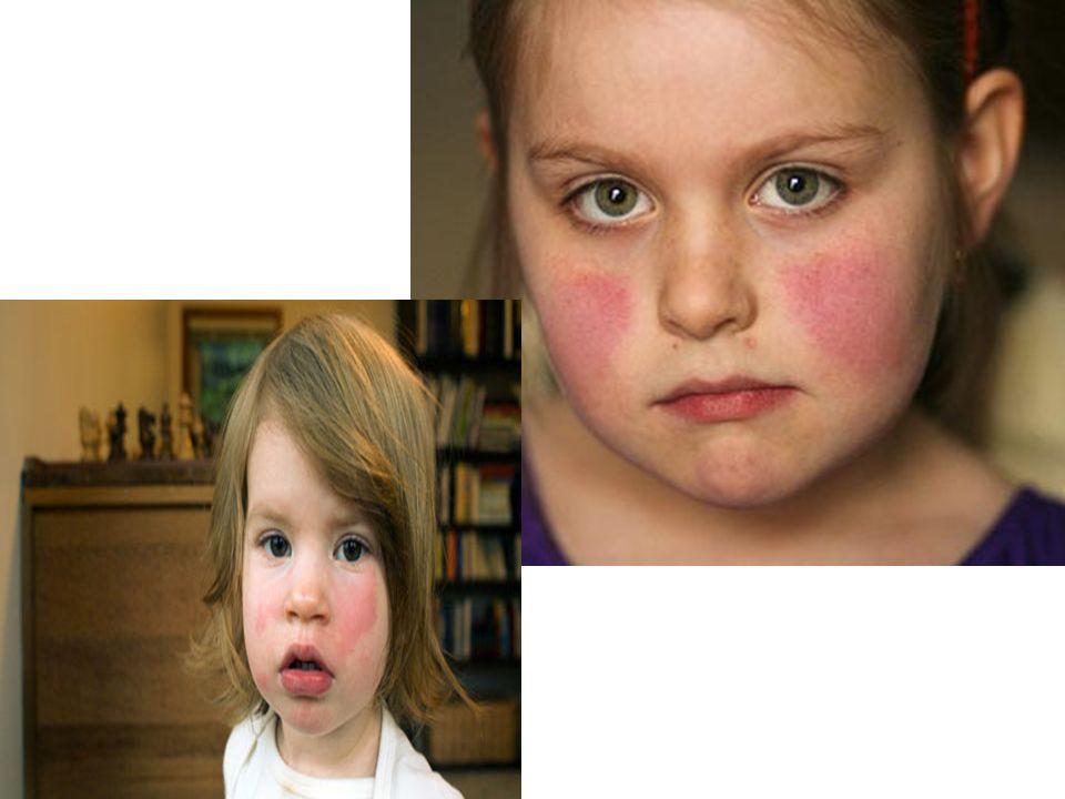 BELİRTİLERİ 2.DÖNEM Genellikle 1-4 gün sonra gövdede ve ekstremitelerin proksimalinde dantel görünümünde makülopapüler döküntü gelişir Döküntü kaşıntılıdır Kollardaki döküntüler dantel gibi örülmüş bir görüntü içerir