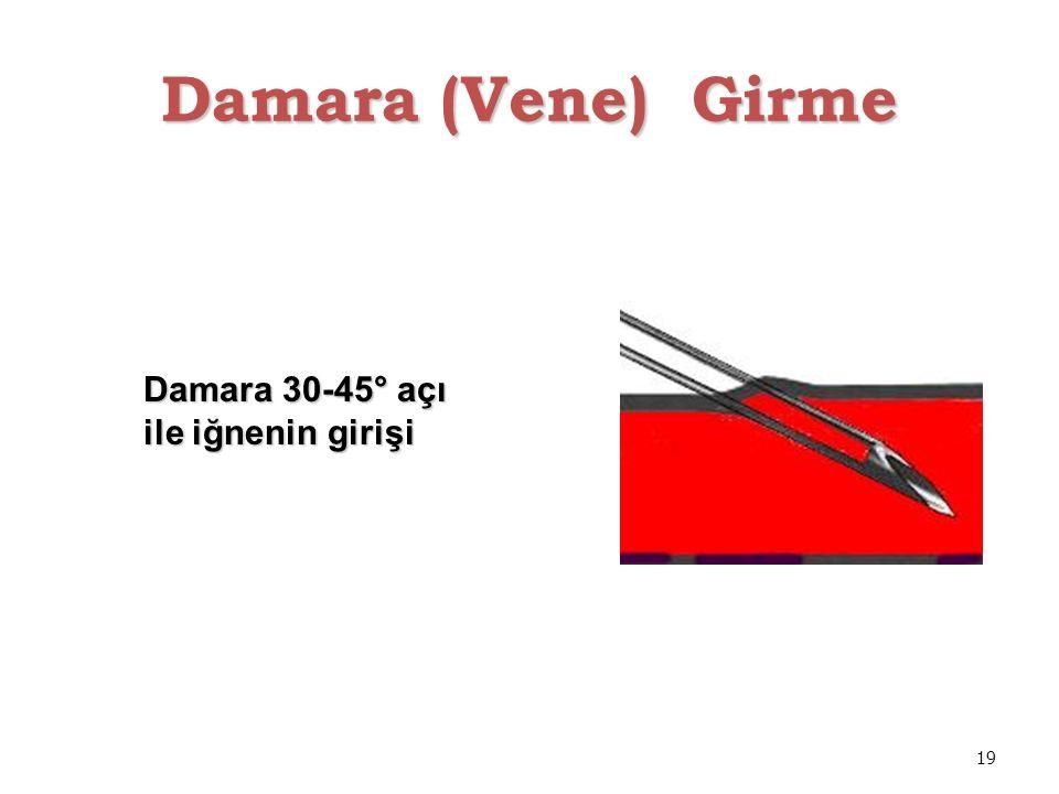 19 Damara (Vene) Girme Damara 30-45° açı ile iğnenin girişi