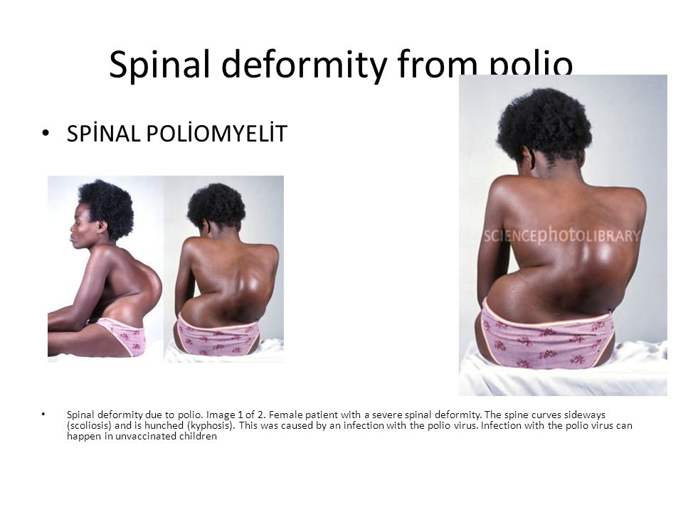 Spinal deformity from polio SPİNAL POLİOMYELİT Spinal deformity due to polio. Image 1 of 2. Female patient with a severe spinal deformity. The spine c