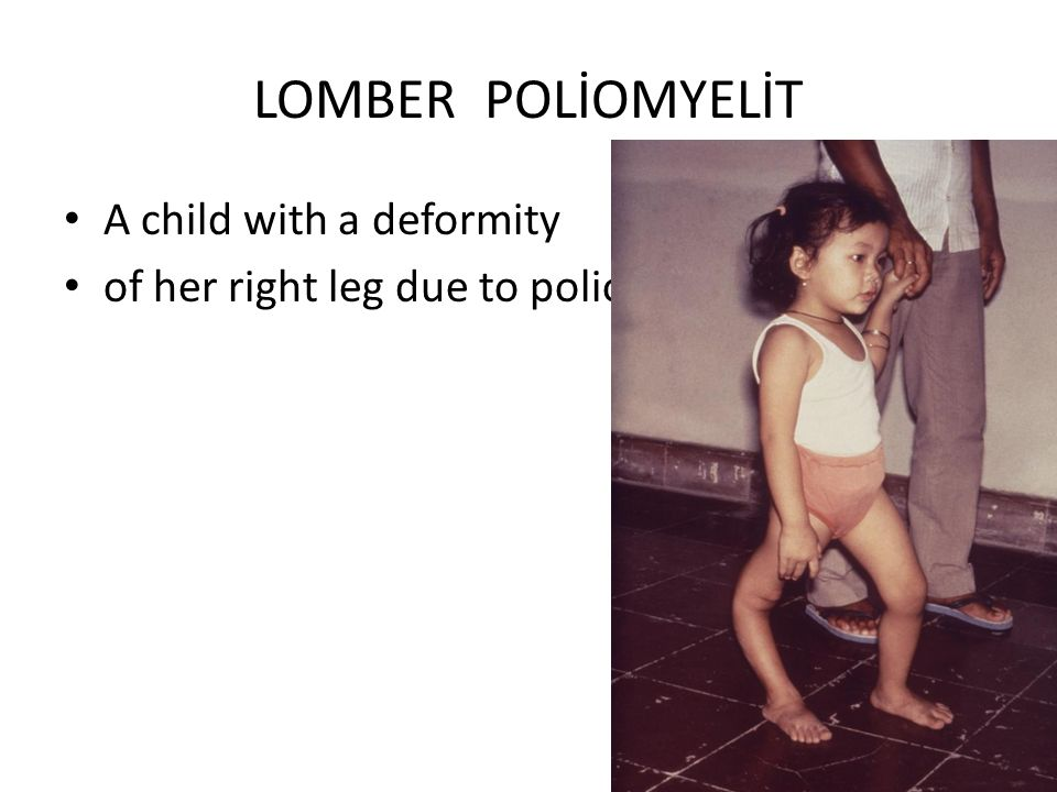 LOMBER POLİOMYELİT A child with a deformity of her right leg due to polio