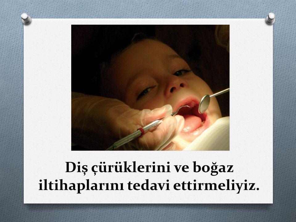 Diş çürüklerini ve boğaz iltihaplarını tedavi ettirmeliyiz.