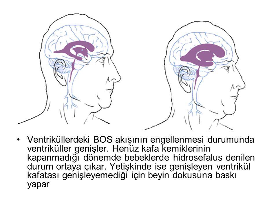 Ventriküllerdeki BOS akışının engellenmesi durumunda ventriküller genişler.