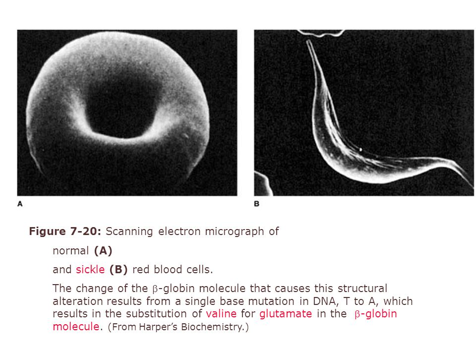 Figure 7-20: Scanning electron micrograph of normal (A) and sickle (B) red blood cells. The change of the -globin molecule that causes this structura