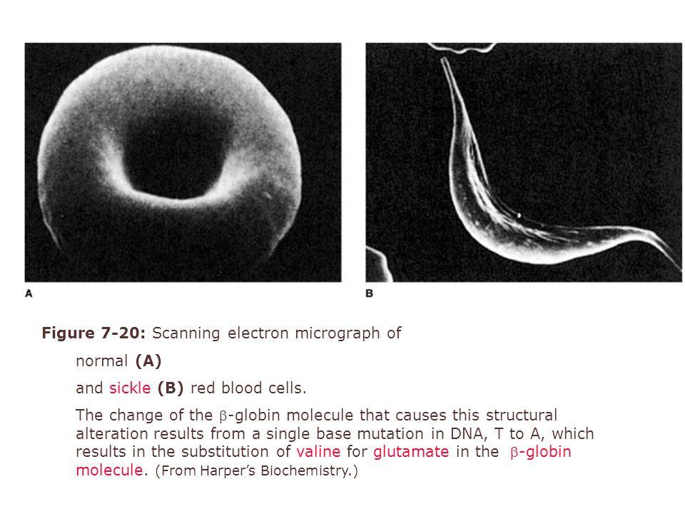 Kan fizyolojisi (2)8 Hemoglobin S düşük oksijen basınçlarında polimerize olur.
