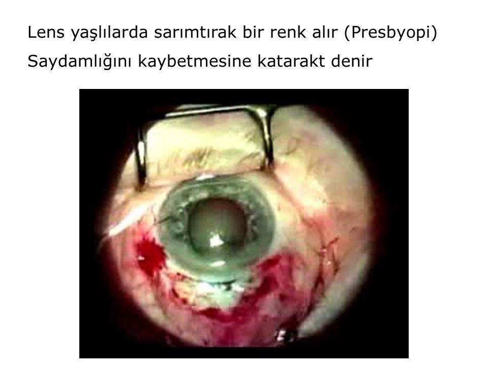 Lens yaşlılarda sarımtırak bir renk alır (Presbyopi) Saydamlığını kaybetmesine katarakt denir