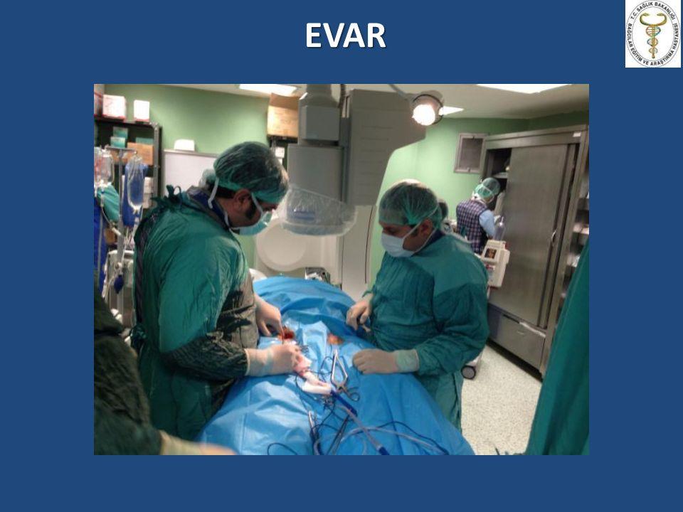 EVAR STENT YERLEŞTİRİLMESİ Hareketsiz Hasta Hareketsiz Hasta Radyolojik analiz Radyolojik analiz Apne Apne Yeterli İntravasküler Volüm Yeterli İntravasküler Volüm Kan basıncı kontrolü- Kalp hızı kontrolü Kan basıncı kontrolü- Kalp hızı kontrolü MAP (60-70 mmHg) ve SAP (< 100mmHg) - Nitrogliserin - Nitroprussid - Beta Bloker - Adenozin, Ventriküler pacing (TEVAR) - İnhalasyon anestetikleri