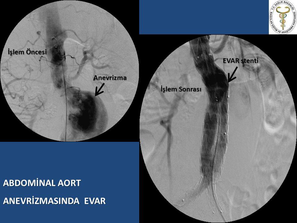 EVAR – LOKAL ANESTEZİ + SEDASYON Lokal Anestezi İşlem alanına LA infiltrasyonu (Bupivakain %0.5) Sinir blokları: ilioinguinal / iliohipogastrik SedasyonMidazolamRemifentanilDeksmedetomidin