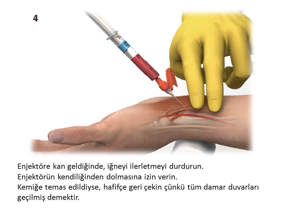 Enj-------- Enjektöre kan geldiğinde, iğneyi ilerletmeyi durdurun. Enjektörün kendiliğinden dolmasına izin verin. Kemiğe temas edildiyse, hafifçe geri