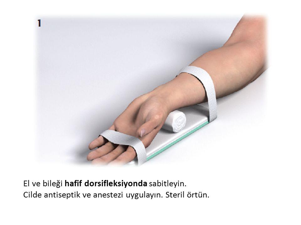 El ve bileği hafif dorsifleksiyonda sabitleyin. Cilde antiseptik ve anestezi uygulayın. Steril örtün.