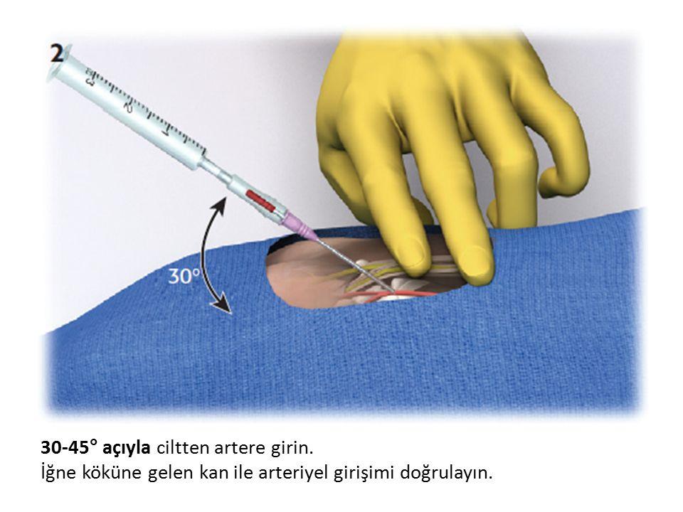 30-45° açıyla ciltten artere girin. İğne köküne gelen kan ile arteriyel girişimi doğrulayın.